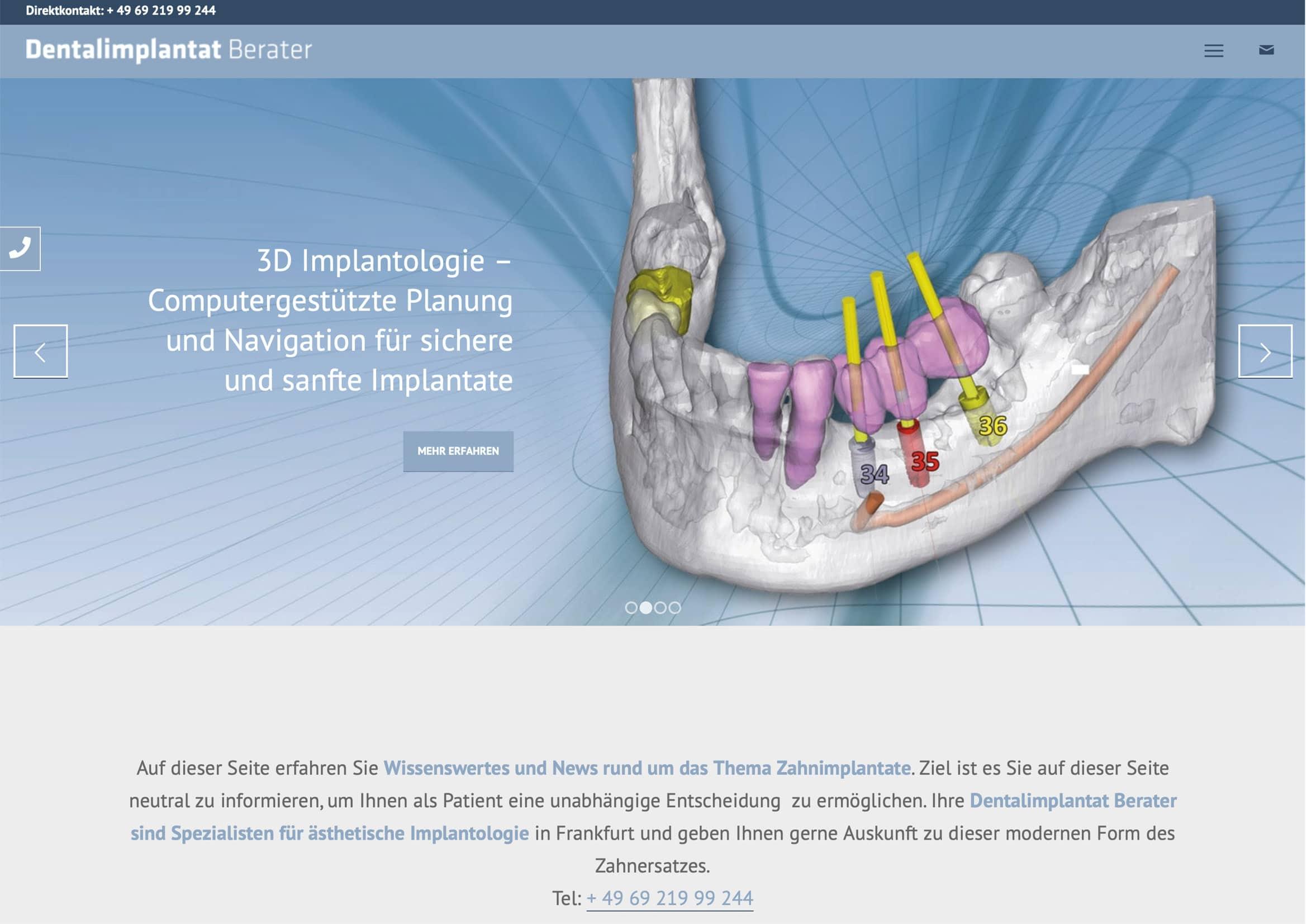 Homepage Entwicklung für Implantat Berater